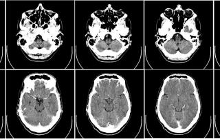CT-Bilder eines Gehirns.